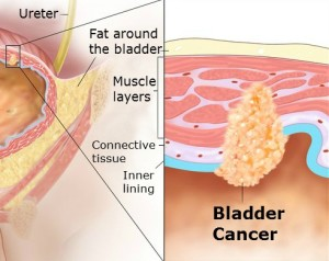 Bladder cancer stage 2 - edited2_10x8.__v100245195