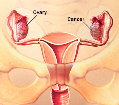 c7_ovarian_cancer