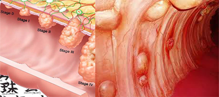 colorectalcancerstages