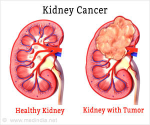 health-facts-on-kidney-cancer-300x250