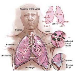 JAMA_Cancer_Lung_Lung_JPP_011-300x300