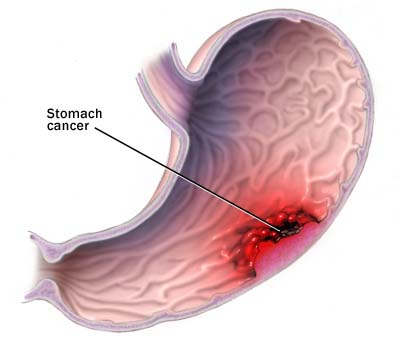 c7_stomach_cancer