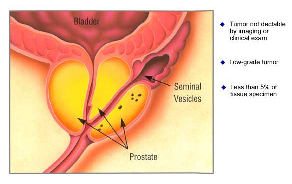 prostate_stage1