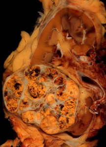 renal-cell-carcinoma-708618