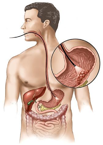 stomach_cancer
