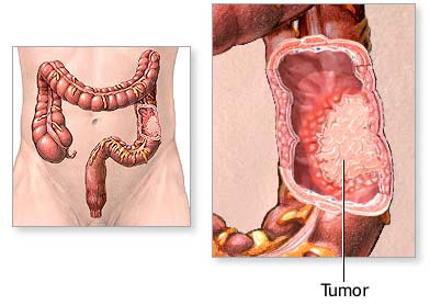 Colorectal Cancer Surgery India Cost Colorectal Cancer Bangalore India