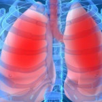 Lung cancer looks so beautiful isn't it!!!!!!